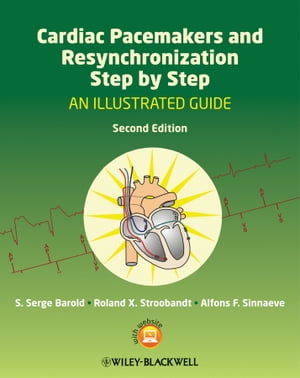 Cardiac Pacemakers and Resynchronization Step by Step An Illustrated Guide