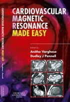 Cardiovascular Magnetic Resonance Made Easy E-Book by Anitha Varghese, MBBS, BSc, MRCP