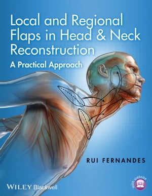 Local and Regional Flaps in Head and Neck Reconstruction A Practical Approach