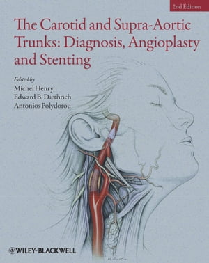 The Carotid and Supra-Aortic Trunks Diagnosis,  Angioplasty and Stenting