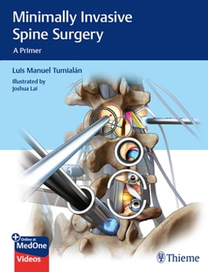 Minimally Invasive Spine Surgery: A Primer by Luis Manuel Tumialan