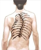 Scoliosis: Causes, Symptoms and Treatments by Denny Domke