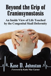 Beyond the Grip of Craniosynostosis: An Inside View of Life Touched by the Congenital Skull…