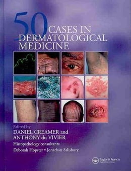 Book Fifty Dermatological Cases by Creamer, Daniel