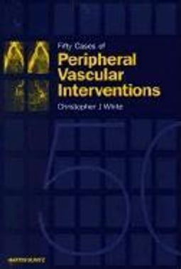 Fifty Cases of Peripheral Vascular Interventions