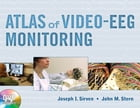 Atlas of Video-EEG Monitoring by Joseph I. Sirven
