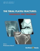 The Tibial Plateu Fractures: Diagnosis and Treatment Volume: 1 by Francesco  Atzori