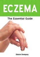 Eczema: The Essential Guide by Sharon Dempsey