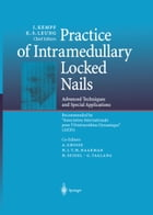 "Practice of Intramedullary Locked Nails: Advanced Techniques and Special Applications Recommended by ""Association Internationale pour l'Ostéo by A. Grosse"