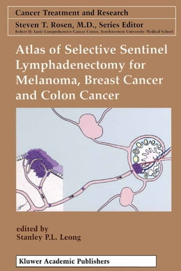 Book Atlas of Selective Sentinel Lymphadenectomy for Melanoma, Breast Cancer and Colon Cancer by Stanley P. L. Leong