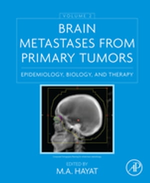 Brain Metastases from Primary Tumors,  Volume 2 Epidemiology,  Biology,  and Therapy