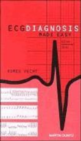 Book ECG Diagnosis Made Easy by Vecht, Romeo J