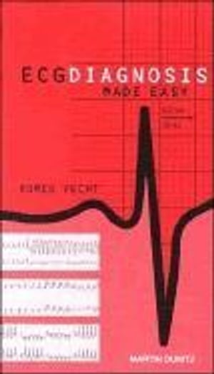 ECG Diagnosis Made Easy