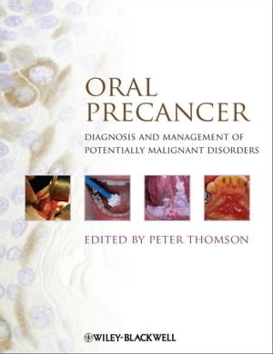 Oral Precancer Diagnosis and Management of Potentially Malignant Disorders