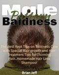 Male Pattern Baldness: The Best Kept Tips on Baldness Cure with Special Hair Growth and Hair Treatment Tips for Thinning Hair. Homemade Hair Loss Shampoo! cda4e85c-5371-4690-bb67-64bbaecc0ae9