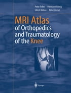 MRI Atlas of Orthopedics and Traumatology of the Knee by Peter Teller