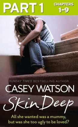 Book Skin Deep: Part 1 of 3: All she wanted was a mummy, but was she too ugly to be loved? by Casey Watson