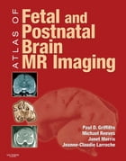 Atlas of Fetal and Infant Brain MR by Paul D. Griffiths