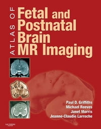 Atlas of Fetal and Infant Brain MR