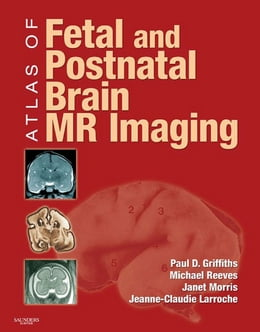 Book Atlas of Fetal and Infant Brain MR by Paul D. Griffiths