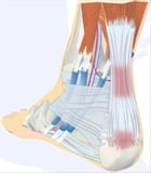 Achilles Tendinitis: Causes, Symptoms and Treatments by Tony Kelly