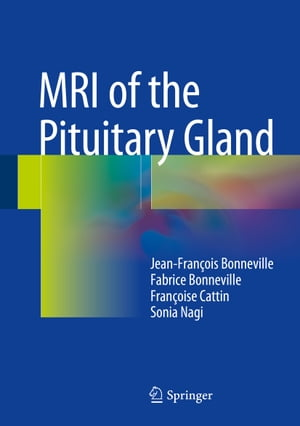 MRI of the Pituitary Gland by Fabrice Bonneville
