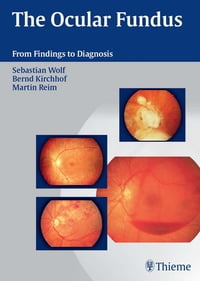 Ocular Fundus: From Findings to Diagnosis