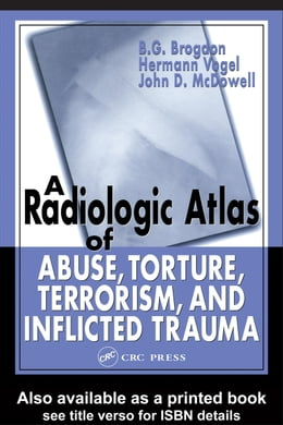 Book A Radiologic Atlas of Abuse, Torture, Terrorism, and Inflicted Trauma by Brogdon, B. G.