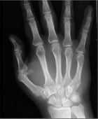Psoriatic Arthritis: Causes, Symptoms and Treatments by Gabrielle Burien