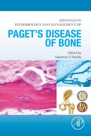 Advances in Pathobiology and Management of Paget?s Disease of Bone