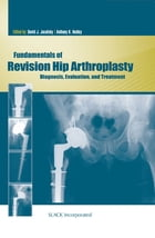 Fundamentals of Revision Hip Arthroplasty: Diagnosis, Evaluation, and Treatment by David Jacofsky