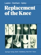 Replacement of the Knee by R.S. Laskin