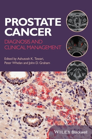 Prostate Cancer Diagnosis and Clinical Management