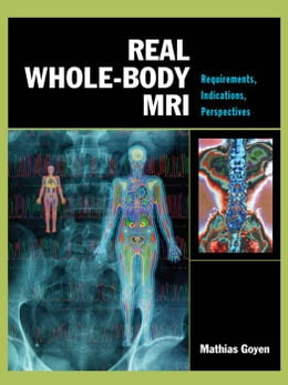 Book Real Whole-Body MRI: Requirements, Indications, Perspectives: Requirements, Indications… by Goyen, Mathias