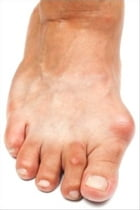 How To Get Rid Of Bunions by Perry Aguilar