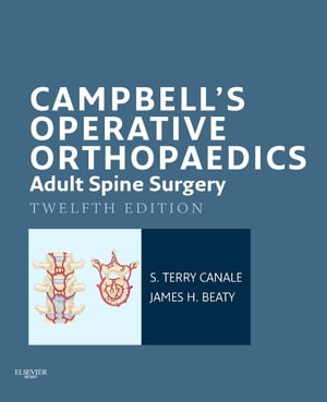 Campbell's Operative Orthopaedics: Adult Spine Surgery