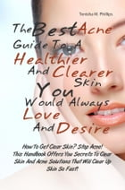 The Best Acne Guide To A Healthier And Clearer Skin You Would Always Love And Desire: How To Get Clear Skin? Stop Acne! This Handbook Offers You Secre by Tenisha M. Phillips