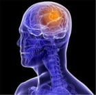 An Informative Guide About Brain Tumors by Maverick Devereux