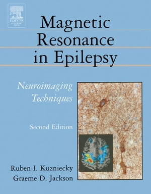 Magnetic Resonance in Epilepsy: Neuroimaging Techniques, Second Edition by Ruben Kuzniecky