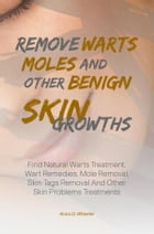 Remove Warts, Moles And Other Benign Skin Growths: Find Natural Warts Treatment, Wart Remedies, Mole Removal, Skin Tags Removal And Other Skin Problem by Anna D. Wheeler