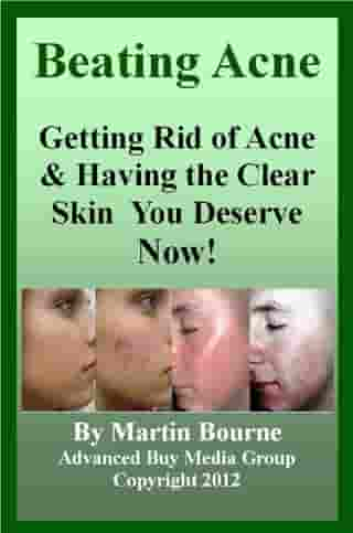Beating Acne: Getting Rid of Acne & Having the Skin You Deserve Now!