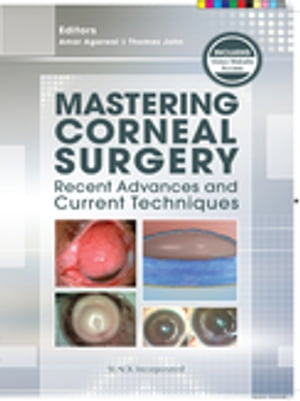 Mastering Corneal Surgery: Recent Advances and Current Techniques