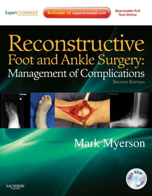 Reconstructive Foot and Ankle Surgery: Management of Complications Expert Consult