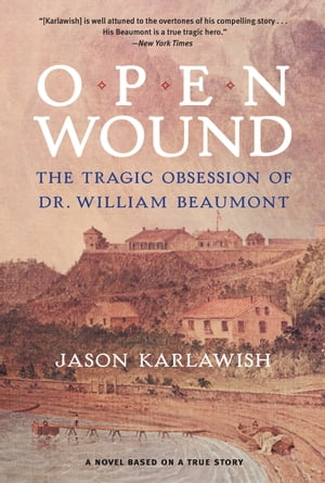 Open Wound The Tragic Obsession of Dr. William Beaumont