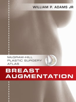 Book Breast Augmentation: An Operative Atlas EBOOK by William Adams