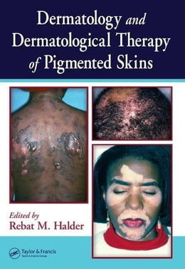 Book Dermatology and Dermatological Therapy of Pigmented Skins by Halder, Rebat