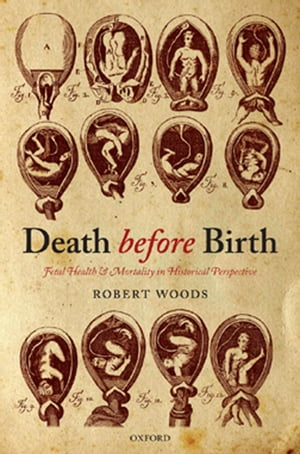 Death before Birth Fetal Health and Mortality in Historical Perspective