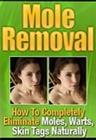 Mole Removal: How to Completely Eliminate Moles, Warts, Skin Tags Naturally by Mark