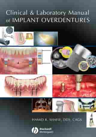 Clinical and Laboratory Manual of Implant Overdentures by Hamid R. Shafie