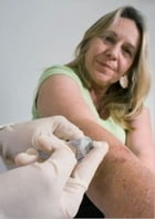 The Essential Guide to Scabies: Causes, Treatments, Symptoms and more by Robert Worrall